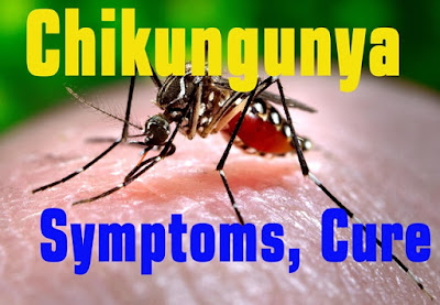 Chikungunya fever virus symptoms cure causes