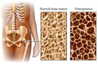 Pengobatan Tradisional Osteoporosis Herbal Dan Alami