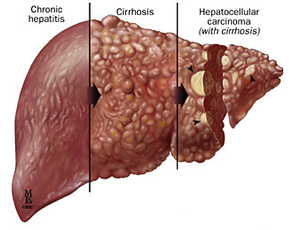 how Hep C affects liver