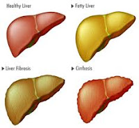 Pengobatan Tradisional Perlemakan Hati (Fatty Liver)