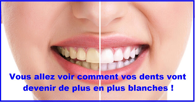 blanchir-dent-naturellement