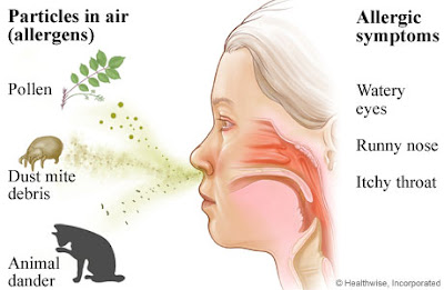 Viêm mũi dị ứng là căn bệnh đáng ghét, gây khó chịu, mệt mỏi và dai dẳng