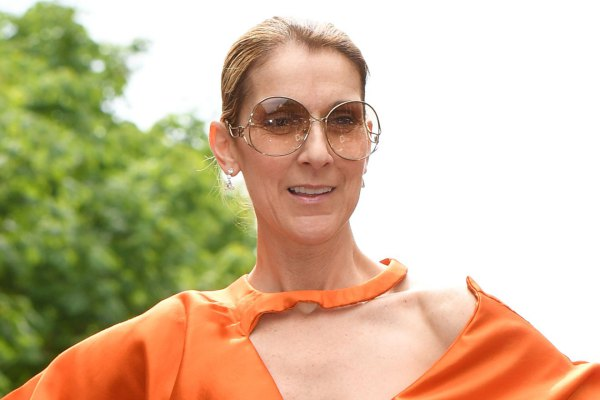 Legendary Singer, Celine Dion looking unrecognizable after her Extreme Facial surgery