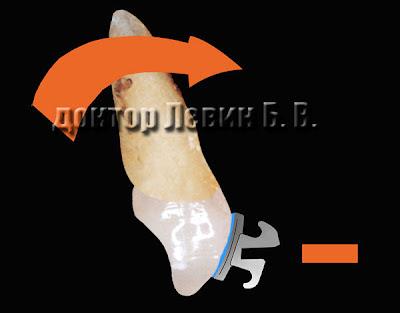 Биомеханика работы брекет системы. Разворот зуба - торк