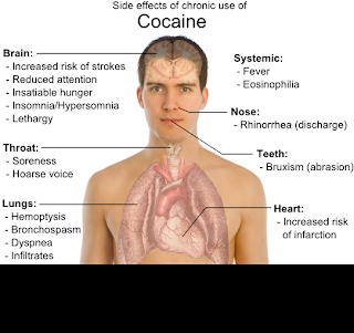 cocaine additions and solution: Effects of A Cocaine Addiction