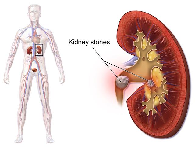 Kidney stones పూర్తిగా తొలగించడానికి ఒక చిన్న చిట్కా...