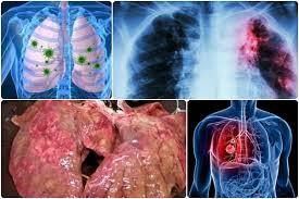 Obat infeksi paru paru ampuh