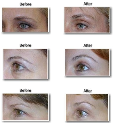 Selston Cosmetic Clinic: Make Your Face Look Younger With ...