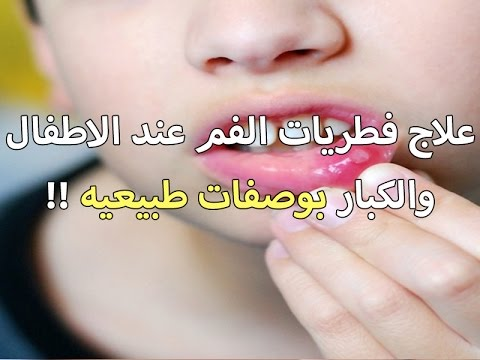 فطريات الفم عند الأطفال وكيفية االعلاج فى المنزل
