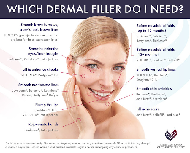 which dermal filler do i need?