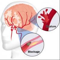 gejala-stroke
