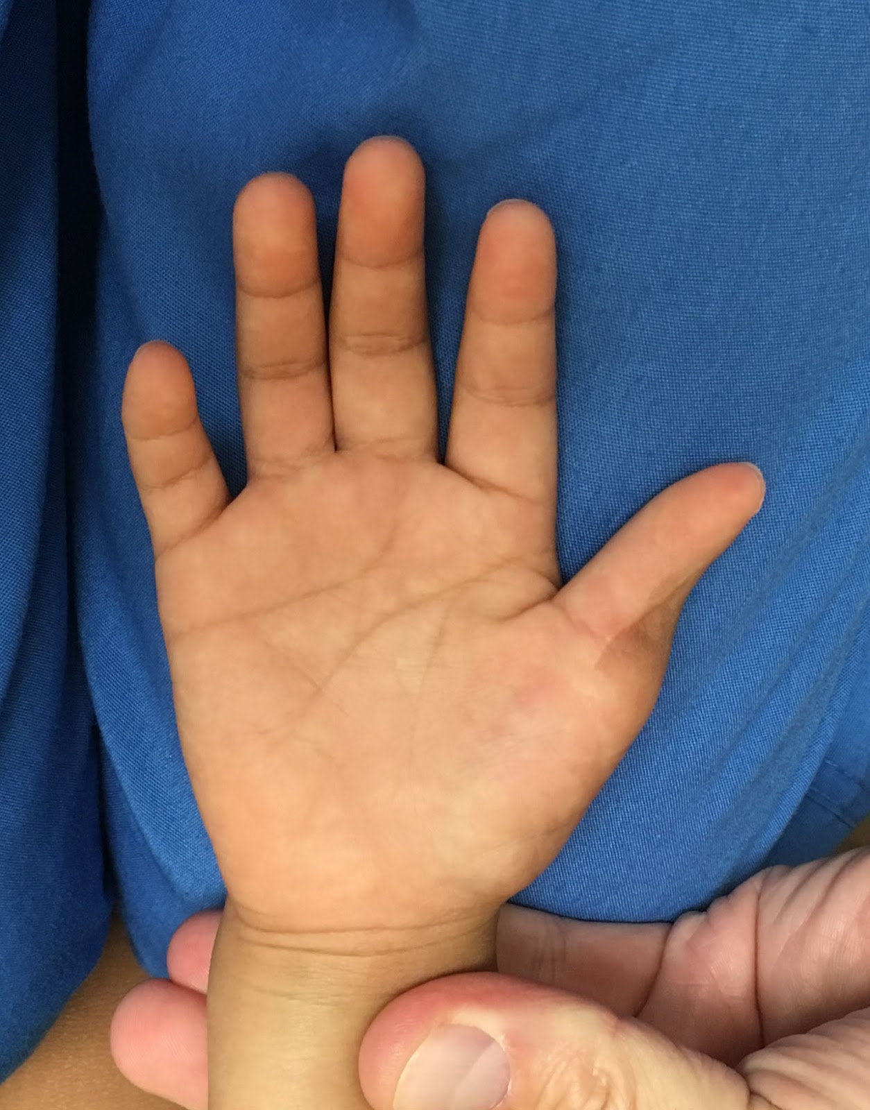 Congenital Hand And Arm Differences