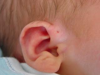 Dysplastic Ears Images, Definition, Symptoms, Causes, Treatment