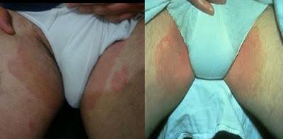 obat jamur kulit dan gatal gatal di selangkangan dan paha