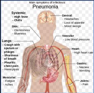 Pneumonia, Gejala, Penyebab, Mencegah dan Pengobatan Terlengkap