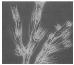 Contoh Chrysophyta (Alga Cokelat Keemasan)