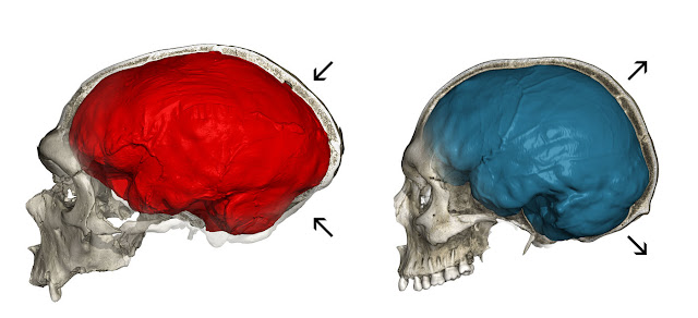 Neanderthal genes influence brain development of modern humans