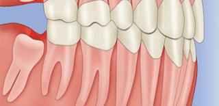 Cách chăm sóc sau khi nhổ răng khôn
