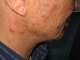 HIV rash on the patient's cheek area. the rashes are red and covered in raised bumps hiv rash photos