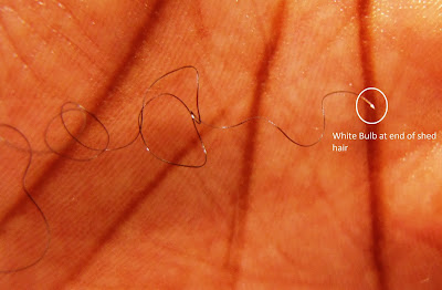 united kinkdom 5 causes of natural hair shedding
