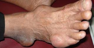 Pengobatan Asam Urat,Penyebab Serta Makanan Pantangannya