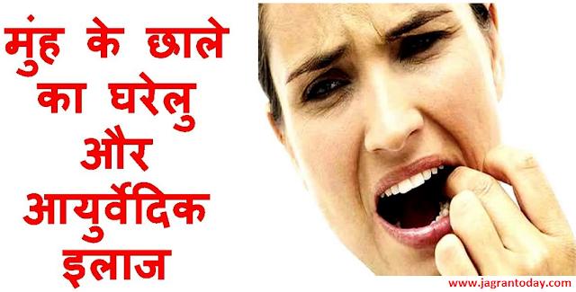 Aakhir Kyon Hote Hai Muhn mein Chhale