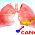 A Brief Overview of Mesothelioma