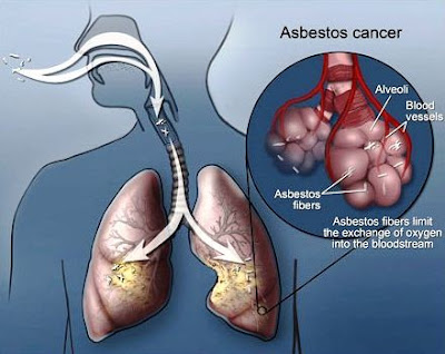 Kanker paru-paru akibat asbes