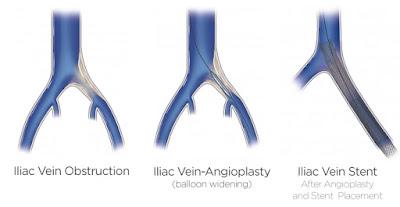 A cirurgia de angioplastia com stent deve ser realizada nos casos de estenose da veia ilíaca após uma trombose
