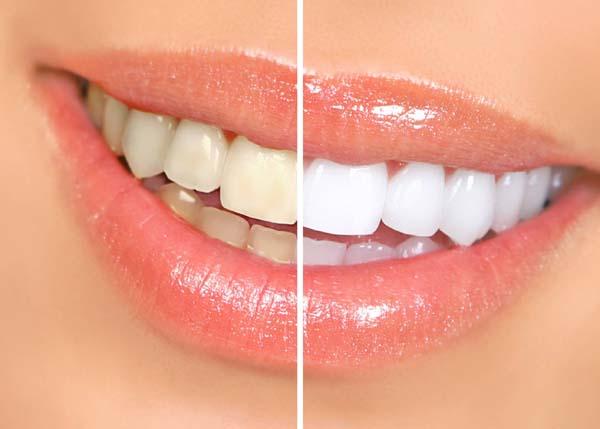 تريدون تبيض الاسنان في دقيقة.... تابعو الموضوع بسرعة