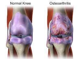 Osteoarthritis Dan Cara Penanggulagannya