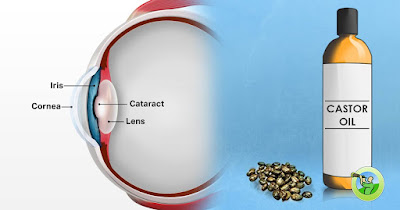 Castor Oil Drops As A Cure For Cataracts