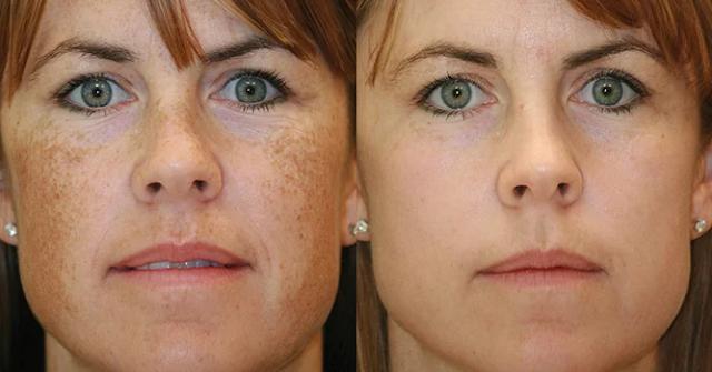 إزالة البقع البنية من الوجه خلال 3 أيام فقط !!!