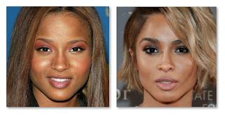 Ciara Before Plastic Surgery