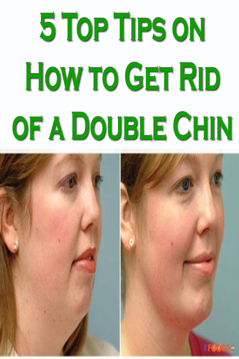5 Top Tips on How to Get Rid of a Double Chin