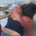 Mulher perde parte do braço ao cair na estação de trens