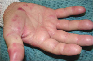 osler s nodes pictures definition symptoms causes treatment