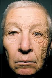 Radiação solar envelhece e causa câncer