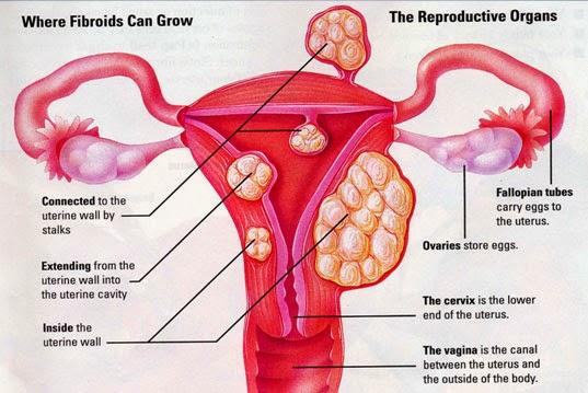 Assured, what masturbation after abdominal myomectomy