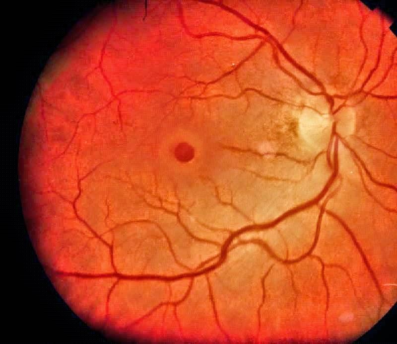 macular hole dream health