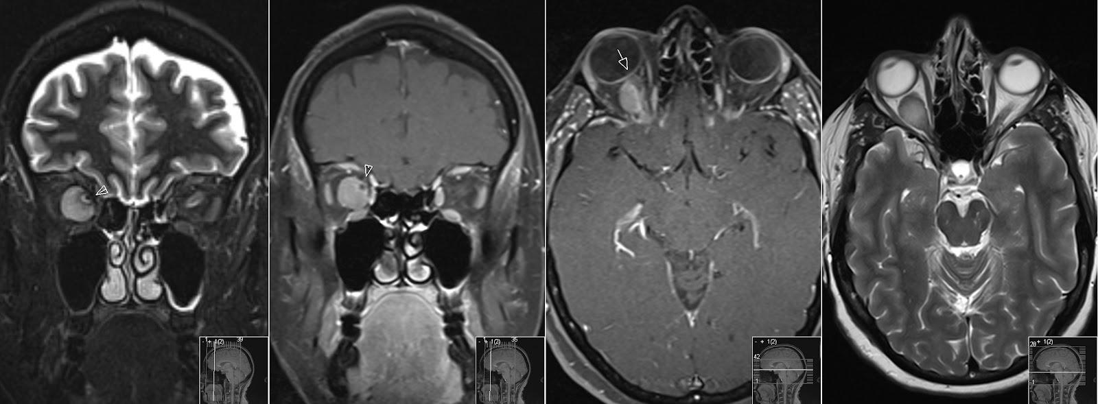 Optic Nerve Sheath Meningioma Radiology Imaging