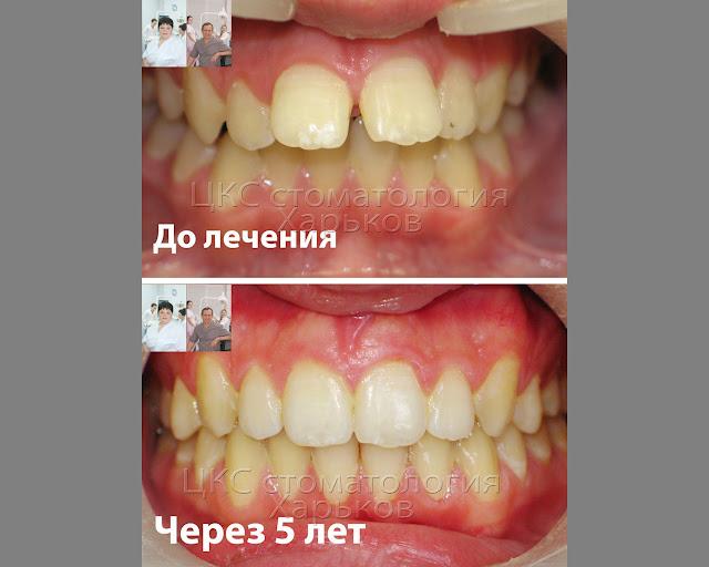 До и после лечения брекетами вид с фронта