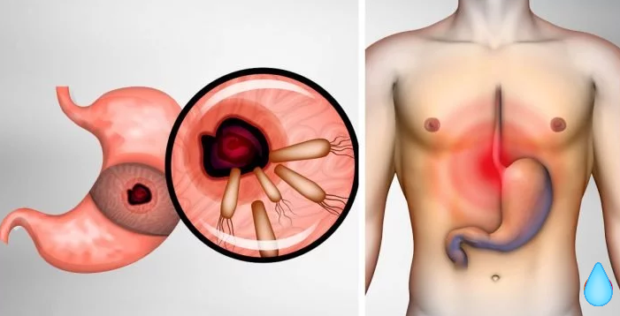 Eliminate The Bacteria That Cause Heartburn And Bloating
