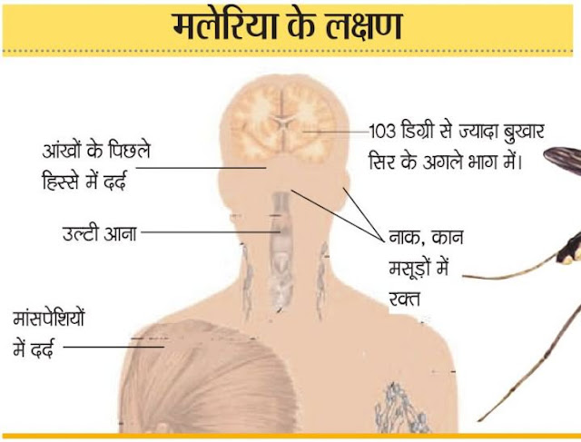 मलेरिया के लक्षण उपचार in hindi