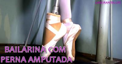 Bailarina com perna amputada volta a dançar balé após prótese inédita