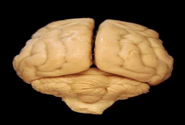 brain-ما-هو-المخ