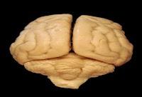 ما هو المخ - (تعريف - كيف يعمل - مكونات - الذاكرة)