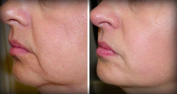 وصفة إسبانية للتخلص من تجاعيد الوجه ومن ترهل الجلد