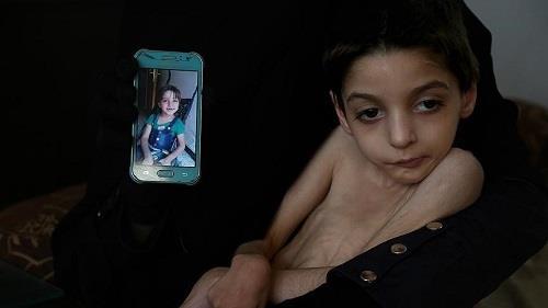 الطفلة السورية رهف حوا