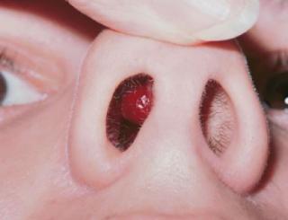 Cara Menghilangkan Benjolan di Dalam Hidung Tanpa Operasi